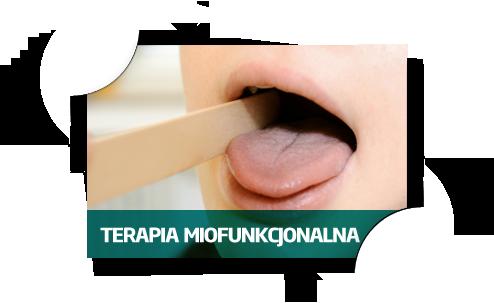terapia-miofunkcjonalna